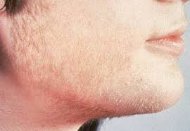 What Is The Solution To PCOS Facial Hair In Women?